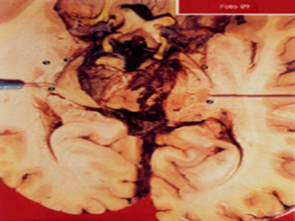 Corte horizontal a nivel de los cuerpos geniculados (1) 2.- Asa de Meyer 3.- Radiaciones ópticas 4.- Corteza visual