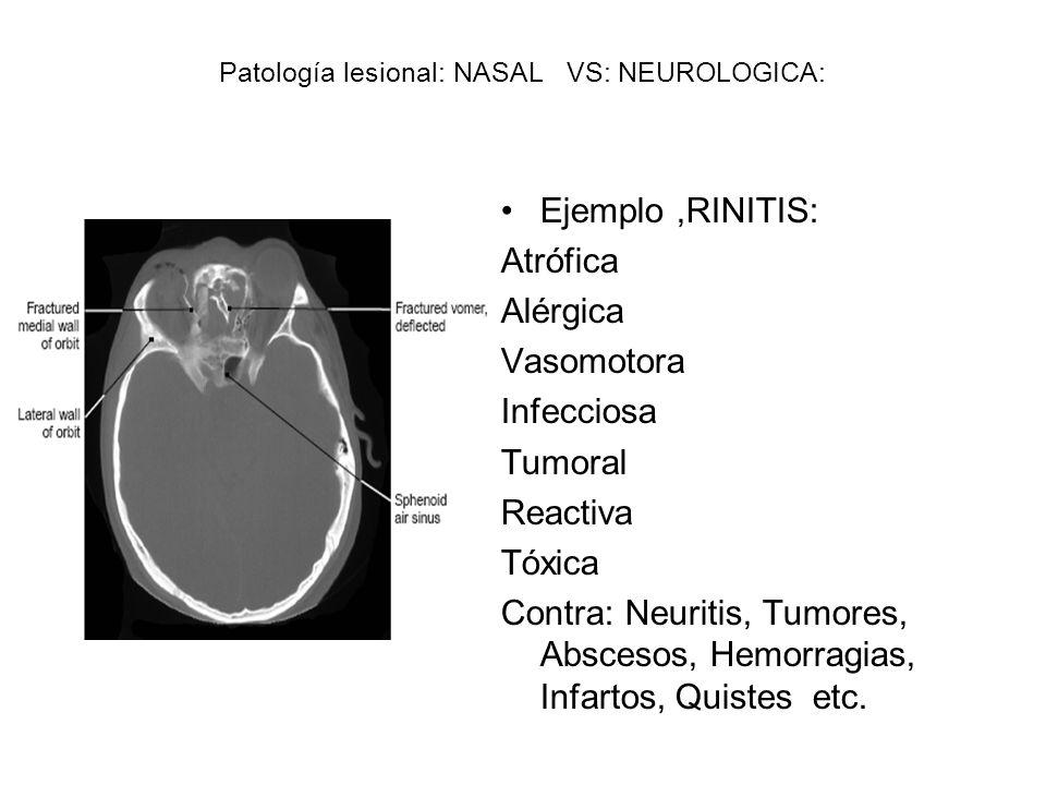 Patología lesional: NASAL VS: NEUROLOGICA: Ejemplo,RINITIS: Atrófica Alérgica Vasomotora Infecciosa Tumoral Reactiva Tóxica Contra: Neuritis, Tumores,