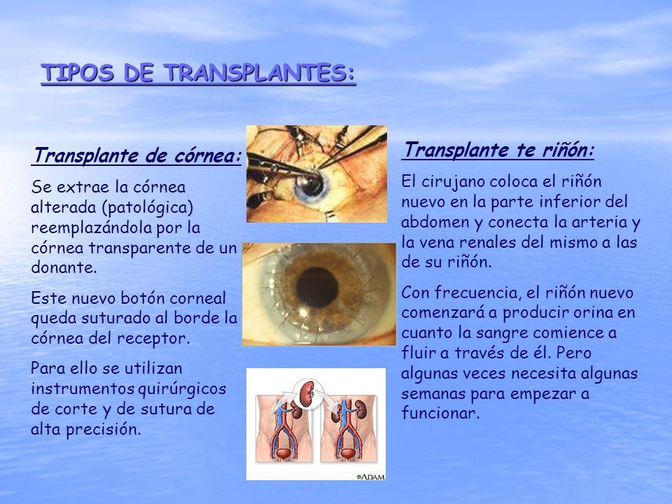 TIPOS DE TRANSPLANTES: Transplante de córnea: Se extrae la córnea alterada (patológica) reemplazándola por la córnea transparente de un donante. Este