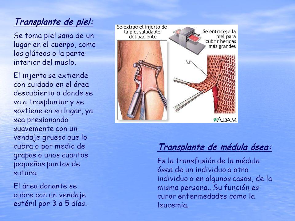 Transplante de piel: Se toma piel sana de un lugar en el cuerpo, como los glúteos o la parte interior del muslo. El injerto se extiende con cuidado en