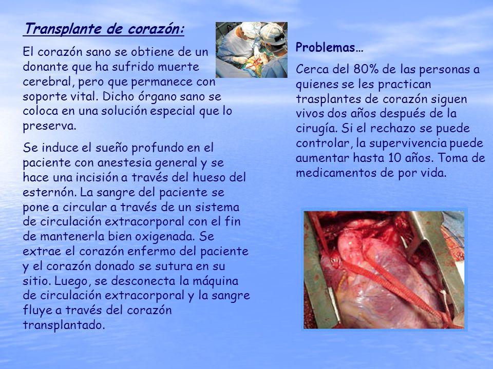 Transplante de corazón: El corazón sano se obtiene de un donante que ha sufrido muerte cerebral, pero que permanece con soporte vital. Dicho órgano sa
