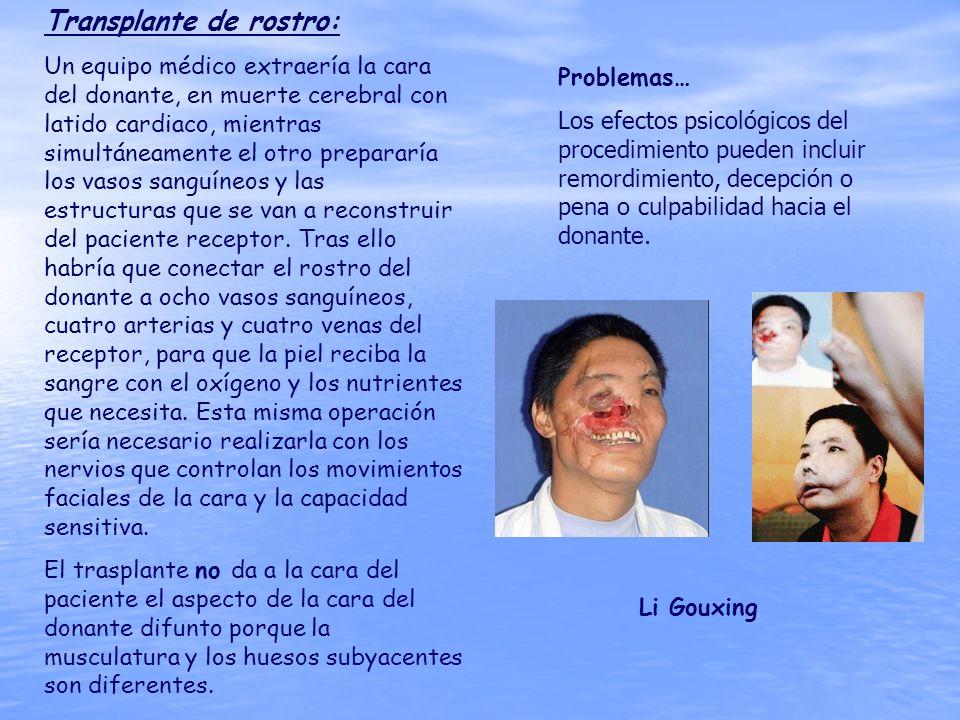 Transplante de rostro: Un equipo médico extraería la cara del donante, en muerte cerebral con latido cardiaco, mientras simultáneamente el otro prepar