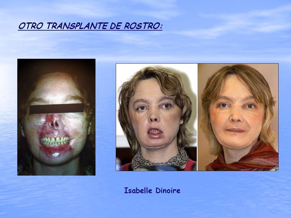 OTRO TRANSPLANTE DE ROSTRO: Isabelle Dinoire