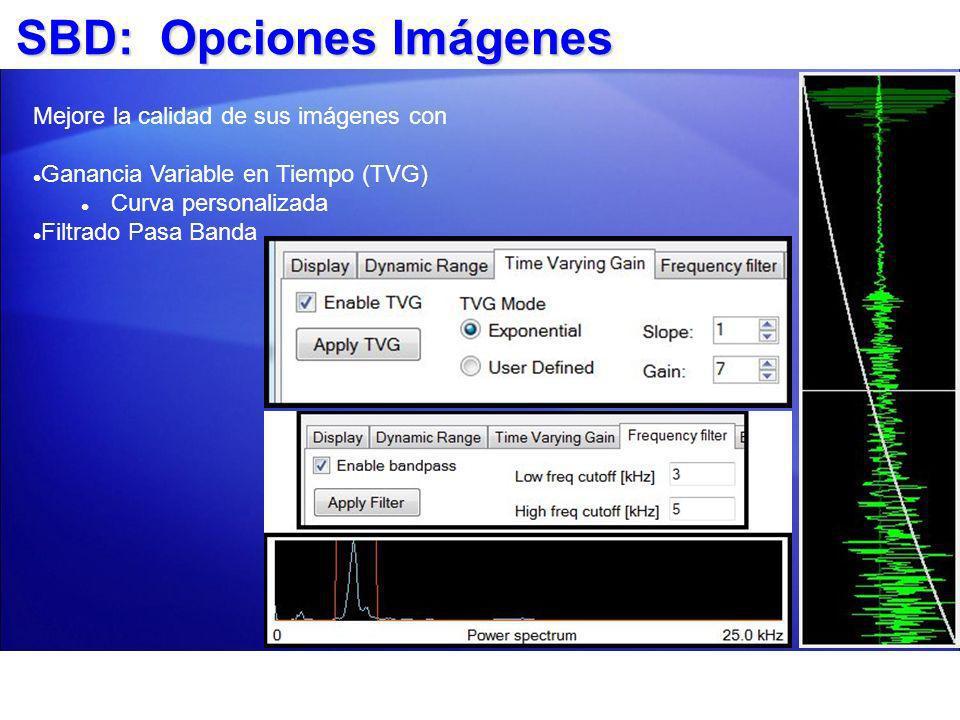 SBD: Opciones Imágenes Mejore la calidad de sus imágenes con Ganancia Variable en Tiempo (TVG) Curva personalizada Filtrado Pasa Banda