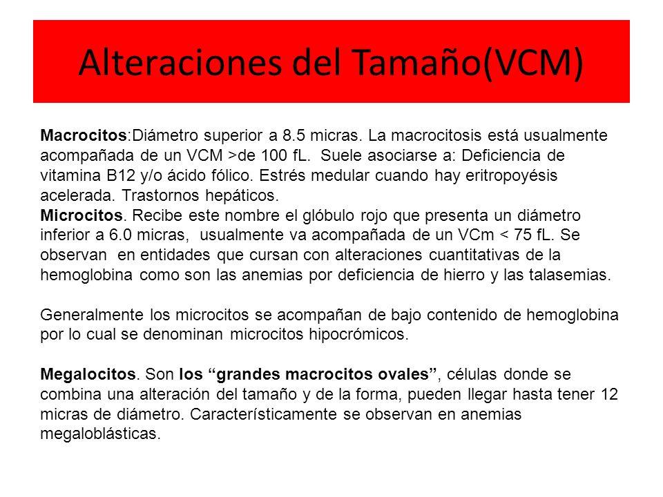 Alteraciones del Tamaño(VCM) Macrocitos:Diámetro superior a 8.5 micras. La macrocitosis está usualmente acompañada de un VCM >de 100 fL. Suele asociar
