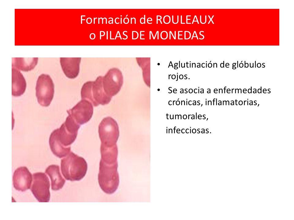 Formación de ROULEAUX o PILAS DE MONEDAS Aglutinación de glóbulos rojos. Se asocia a enfermedades crónicas, inflamatorias, tumorales, infecciosas.