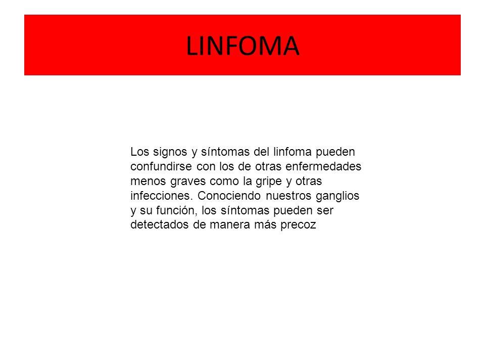 LINFOMA Los signos y síntomas del linfoma pueden confundirse con los de otras enfermedades menos graves como la gripe y otras infecciones. Conociendo