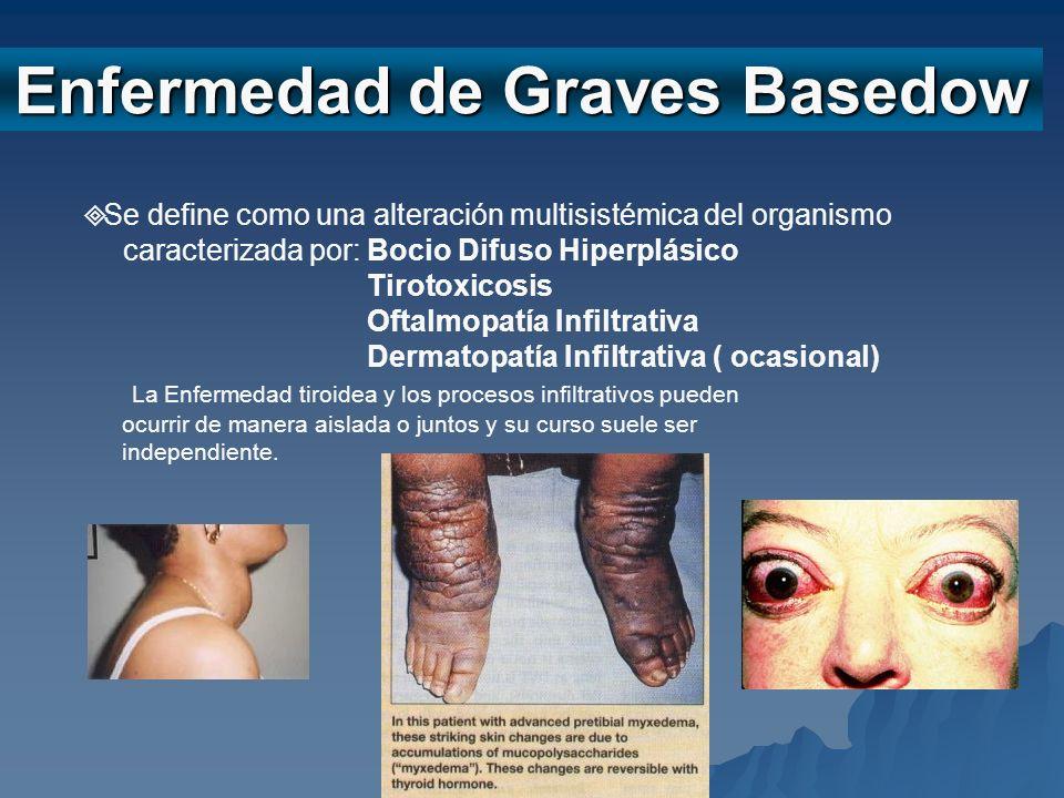 STB Enfermedad de Graves Basedow Se define como una alteración multisistémica del organismo caracterizada por: Bocio Difuso Hiperplásico Tirotoxicosis