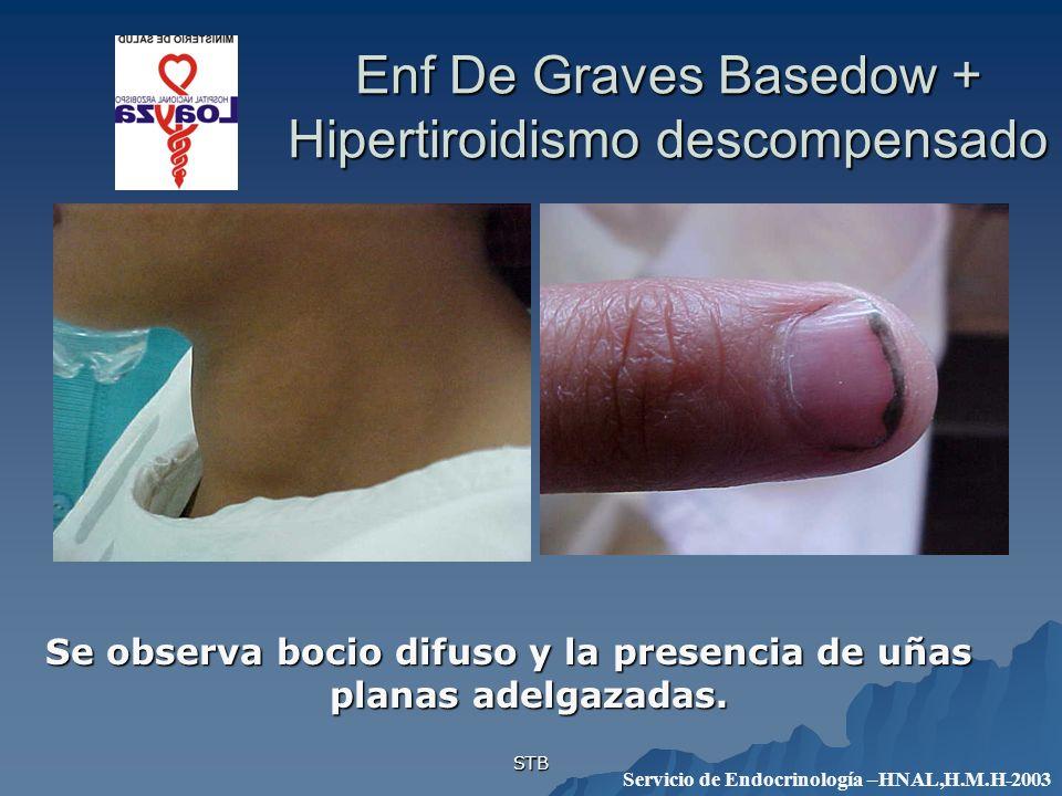 STB Enf De Graves Basedow + Hipertiroidismo descompensado Se observa bocio difuso y la presencia de uñas planas adelgazadas. Servicio de Endocrinologí