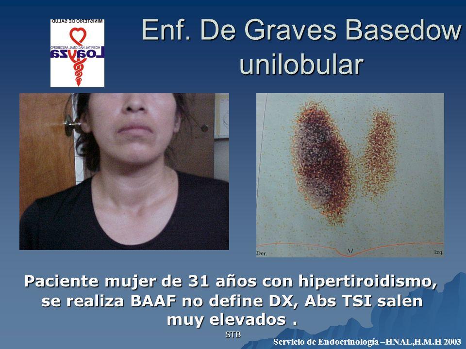 STB Enf. De Graves Basedow unilobular Paciente mujer de 31 años con hipertiroidismo, se realiza BAAF no define DX, Abs TSI salen muy elevados. Pacient