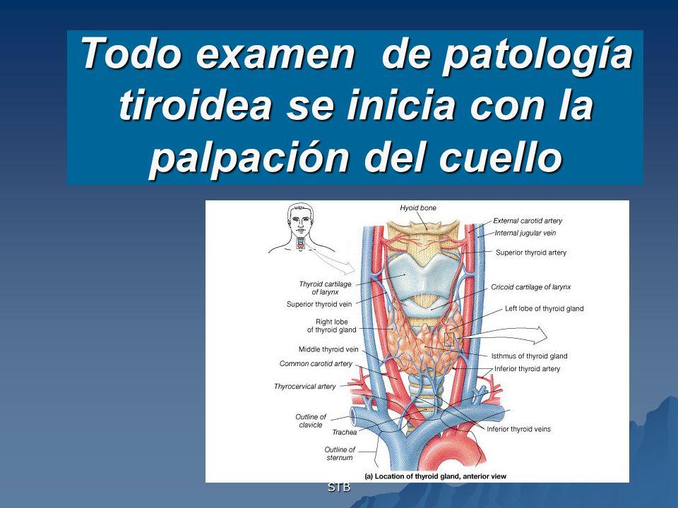 STB Todo examen de patología tiroidea se inicia con la palpación del cuello