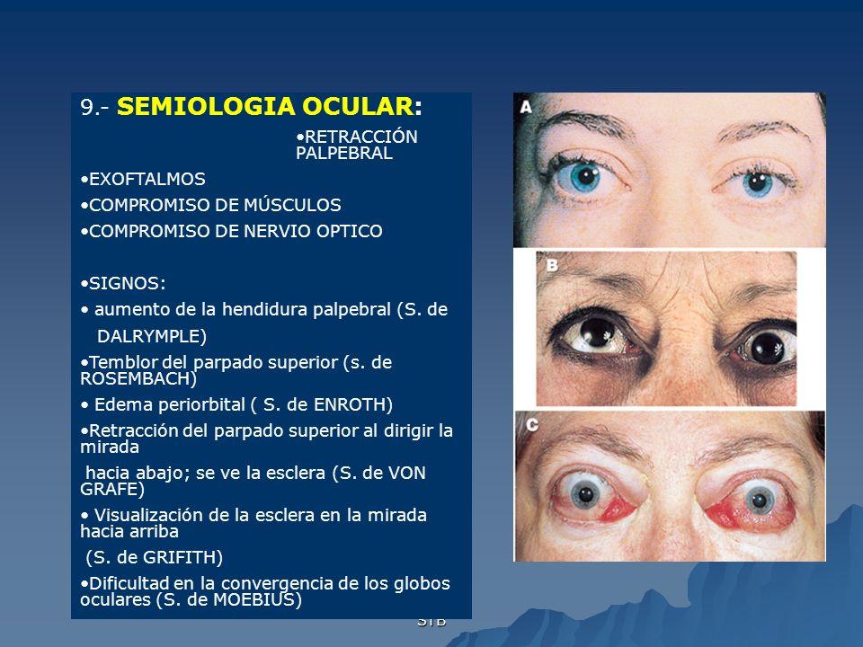 STB 9.- SEMIOLOGIA OCULAR: RETRACCIÓN PALPEBRAL EXOFTALMOS COMPROMISO DE MÚSCULOS COMPROMISO DE NERVIO OPTICO SIGNOS: aumento de la hendidura palpebra