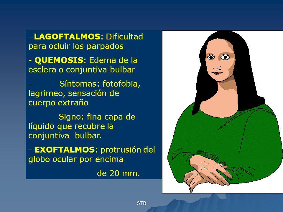 STB - LAGOFTALMOS: Dificultad para ocluir los parpados - QUEMOSIS: Edema de la esclera o conjuntiva bulbar - Síntomas: fotofobia, lagrimeo, sensación