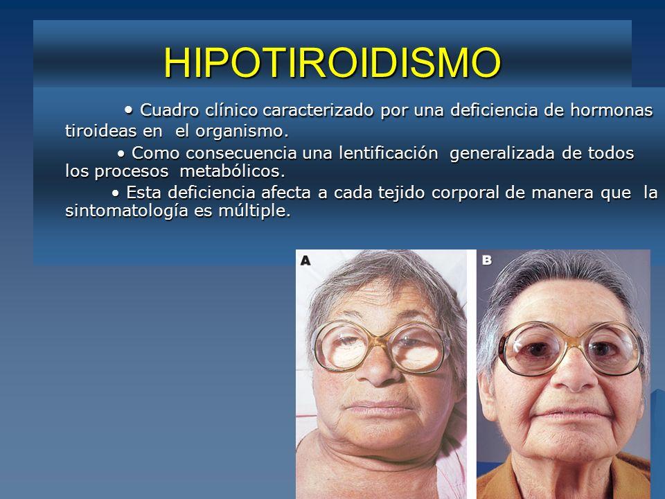 STB HIPOTIROIDISMO Cuadro clínico caracterizado por una deficiencia de hormonas tiroideas en el organismo. Cuadro clínico caracterizado por una defici