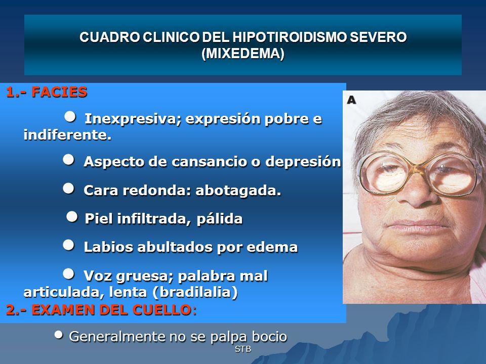 STB CUADRO CLINICO DEL HIPOTIROIDISMO SEVERO (MIXEDEMA) 1.- FACIES Inexpresiva; expresión pobre e indiferente. Inexpresiva; expresión pobre e indifere