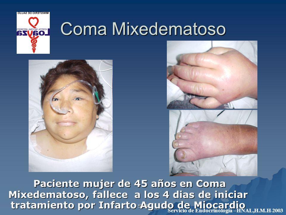 STB Coma Mixedematoso Paciente mujer de 45 años en Coma Mixedematoso, fallece a los 4 dias de iniciar tratamiento por Infarto Agudo de Miocardio Pacie