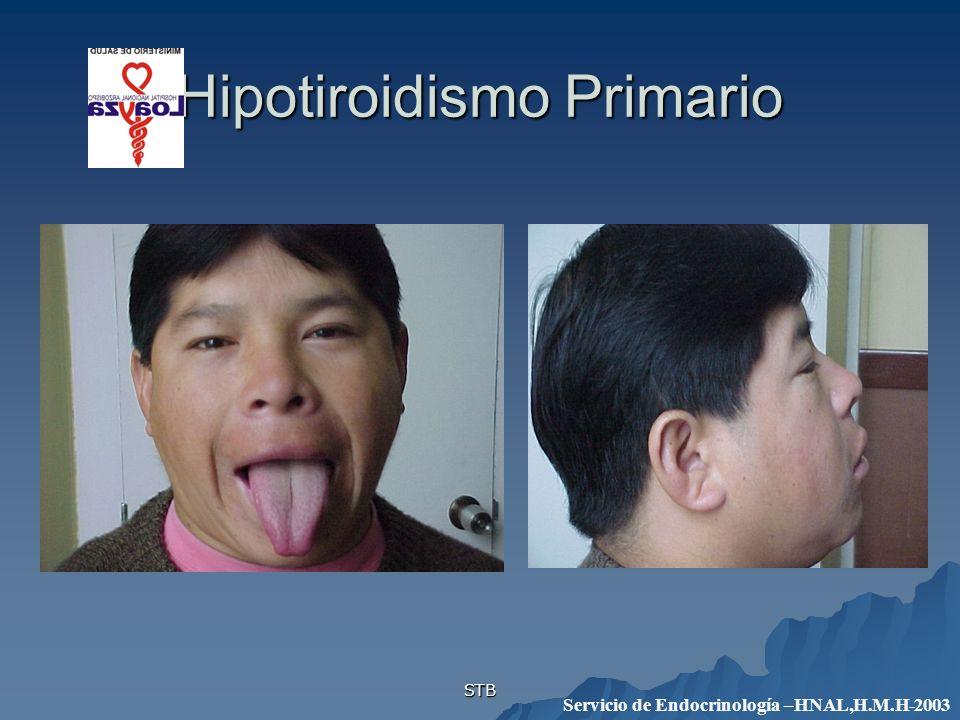 STB Hipotiroidismo Primario Servicio de Endocrinología –HNAL,H.M.H-2003