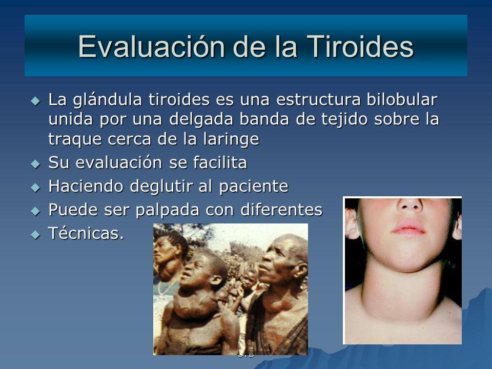 STB Evaluación de la Tiroides La glándula tiroides es una estructura bilobular unida por una delgada banda de tejido sobre la traque cerca de la larin