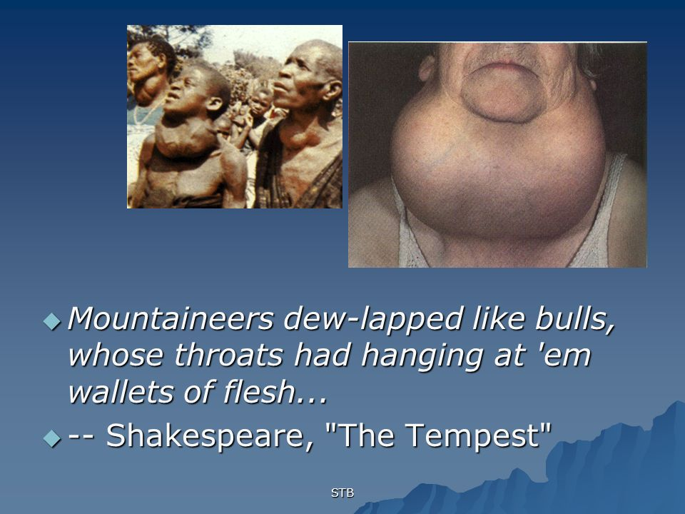 STB Mountaineers dew-lapped like bulls, whose throats had hanging at em wallets of flesh...