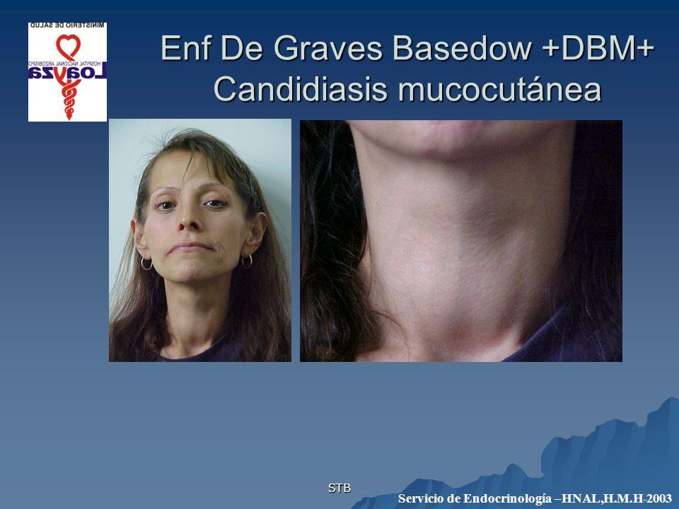 STB Enf De Graves Basedow +DBM+ Candidiasis mucocutánea Servicio de Endocrinología –HNAL,H.M.H-2003