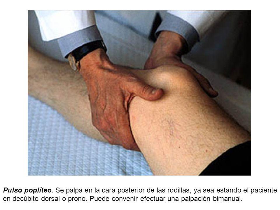 Pulso poplíteo. Se palpa en la cara posterior de las rodillas, ya sea estando el paciente en decúbito dorsal o prono. Puede convenir efectuar una palp