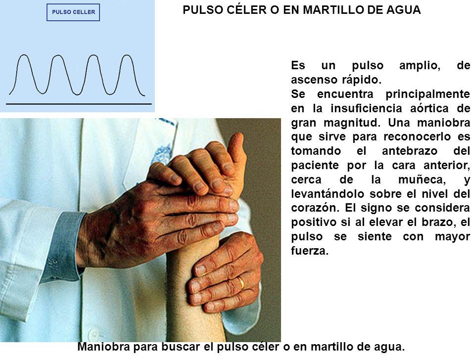 Maniobra para buscar el pulso céler o en martillo de agua. Es un pulso amplio, de ascenso rápido. Se encuentra principalmente en la insuficiencia aórt