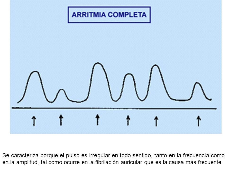 Se caracteriza porque el pulso es irregular en todo sentido, tanto en la frecuencia como en la amplitud, tal como ocurre en la fibrilación auricular q