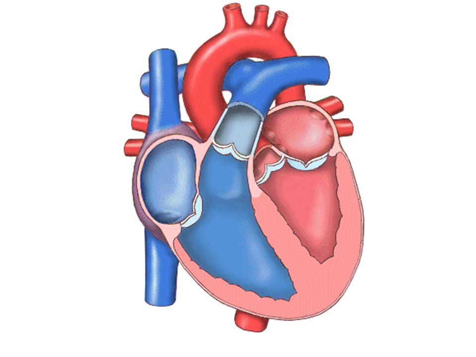 Se puede encontrar en cuadros de insuficiencia cardiaca avanzada.