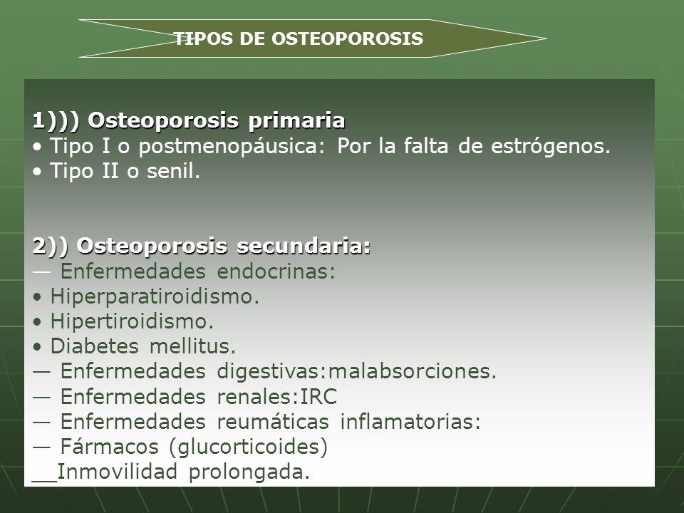 1))) Osteoporosis primaria Tipo I o postmenopáusica: Por la falta de estrógenos. Tipo II o senil. 2)) Osteoporosis secundaria: Enfermedades endocrinas