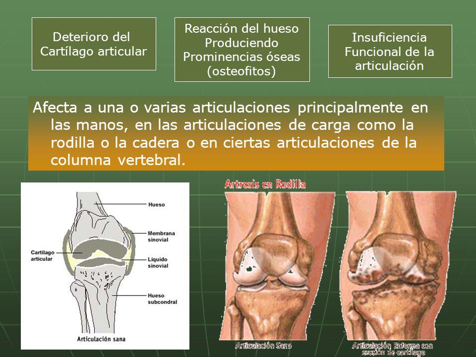 Afecta a una o varias articulaciones principalmente en las manos, en las articulaciones de carga como la rodilla o la cadera o en ciertas articulacion