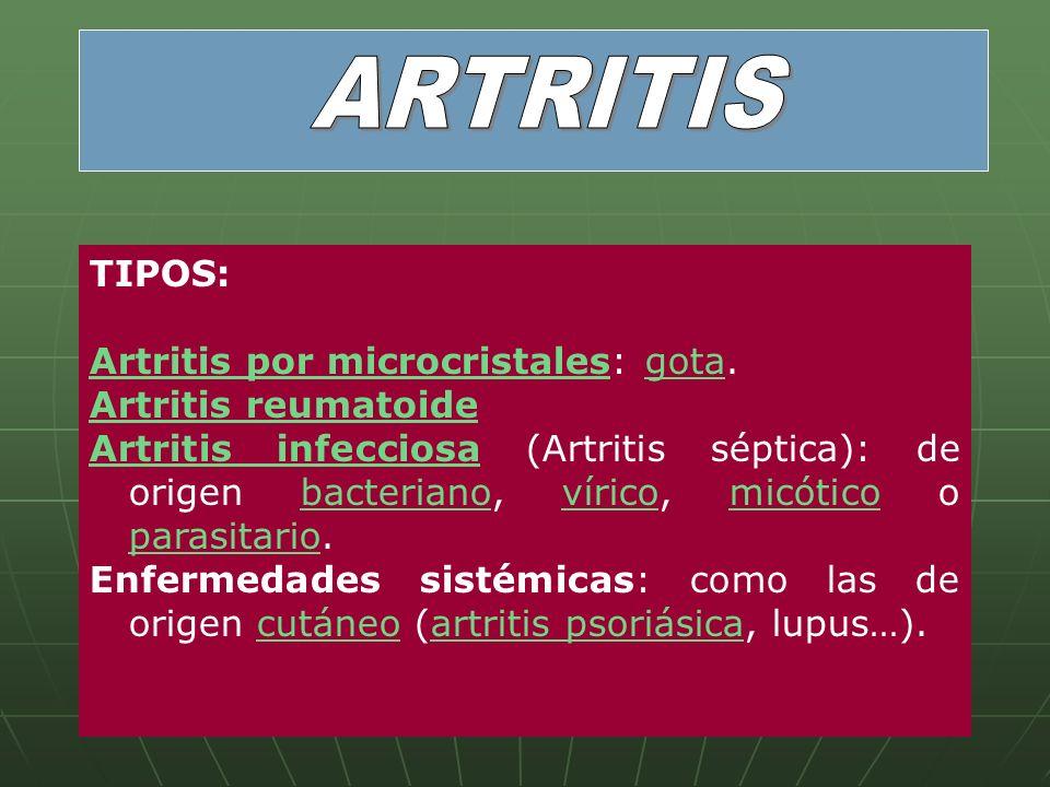 TIPOS: Artritis por microcristalesArtritis por microcristales: gota.gota Artritis reumatoide Artritis infecciosaArtritis infecciosa (Artritis séptica)