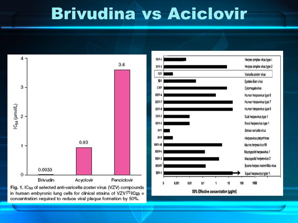 Brivudina vs Aciclovir