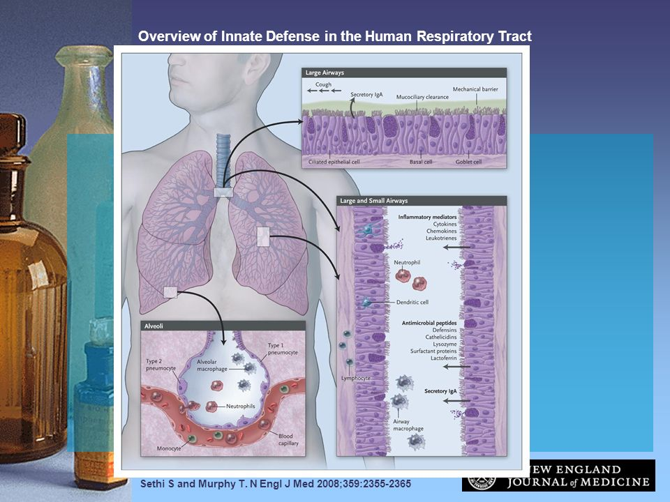 Sethi S and Murphy T. N Engl J Med 2008;359:2355-2365 Overview of Innate Defense in the Human Respiratory Tract
