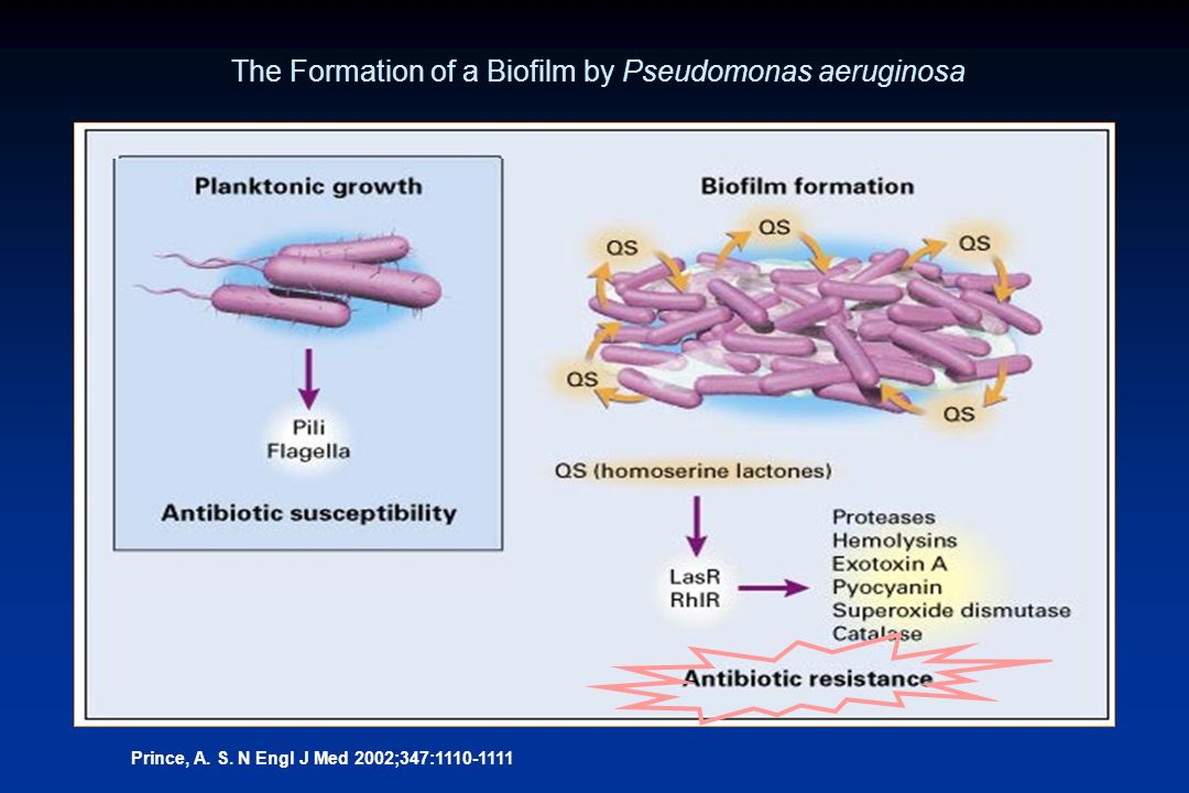 Prince, A. S. N Engl J Med 2002;347:1110-1111 The Formation of a Biofilm by Pseudomonas aeruginosa