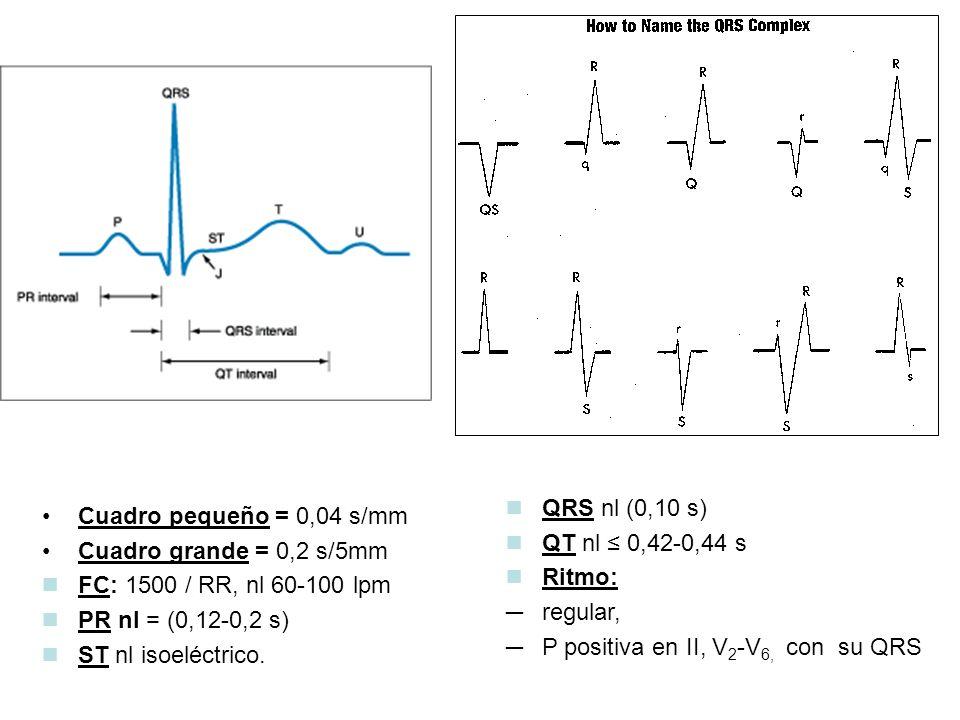 Cuadro pequeño = 0,04 s/mm Cuadro grande = 0,2 s/5mm FC: 1500 / RR, nl 60-100 lpm PR nl = (0,12-0,2 s) ST nl isoeléctrico.