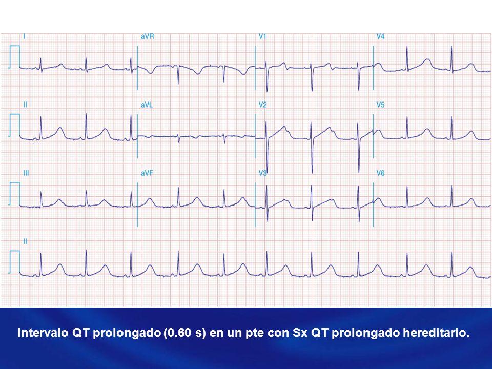 Intervalo QT prolongado (0.60 s) en un pte con Sx QT prolongado hereditario.