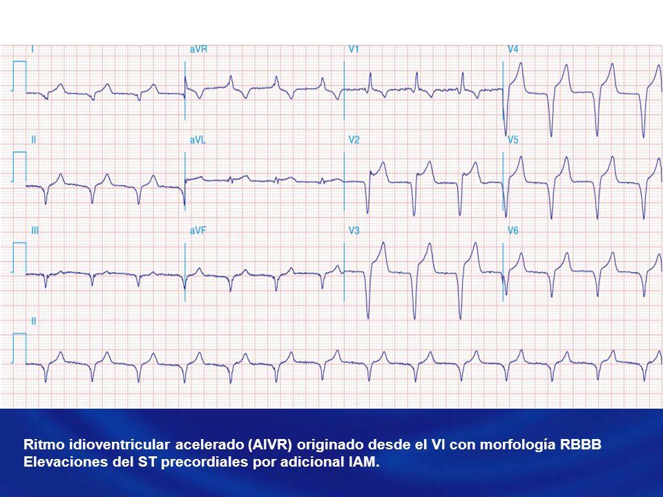 Ritmo idioventricular acelerado (AIVR) originado desde el VI con morfología RBBB Elevaciones del ST precordiales por adicional IAM.
