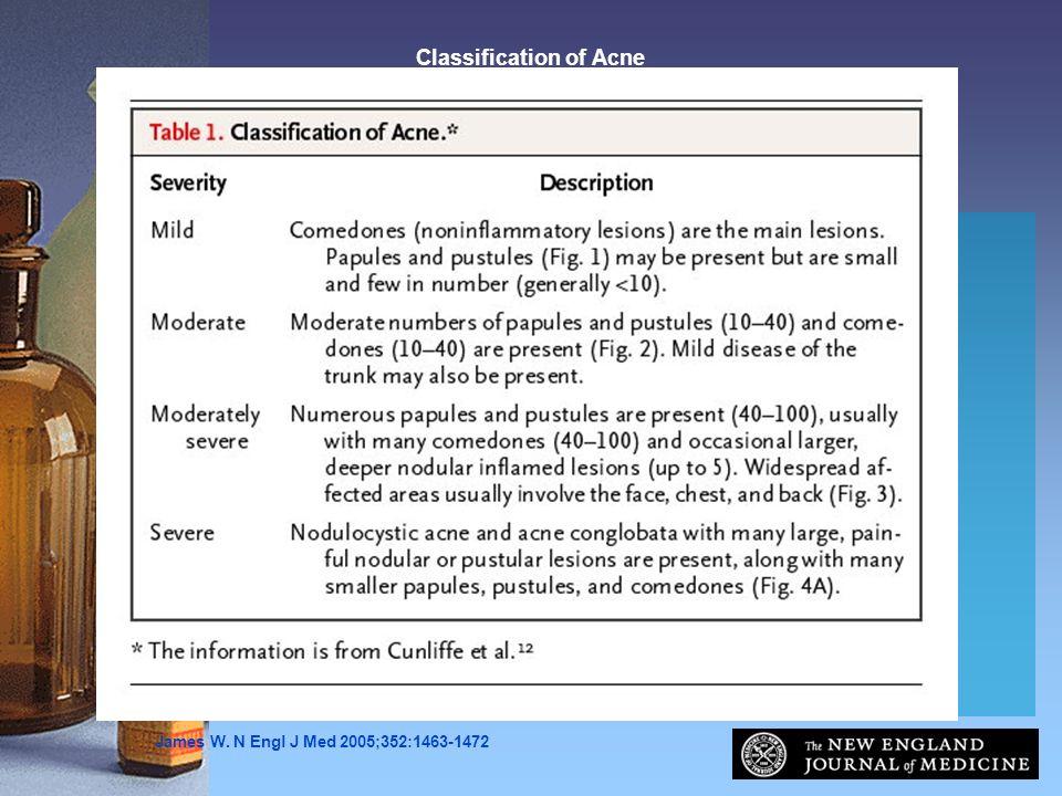James W. N Engl J Med 2005;352:1463-1472 Classification of Acne