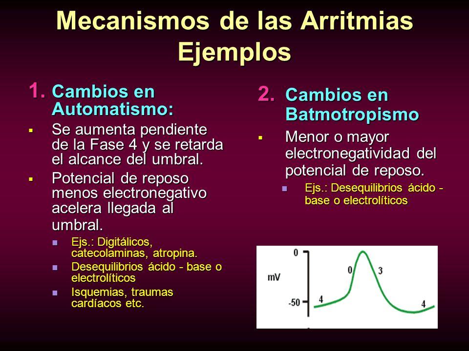 Mecanismos de las Arritmias Ejemplos 1. Cambios en Automatismo: Se aumenta pendiente de la Fase 4 y se retarda el alcance del umbral. Se aumenta pendi