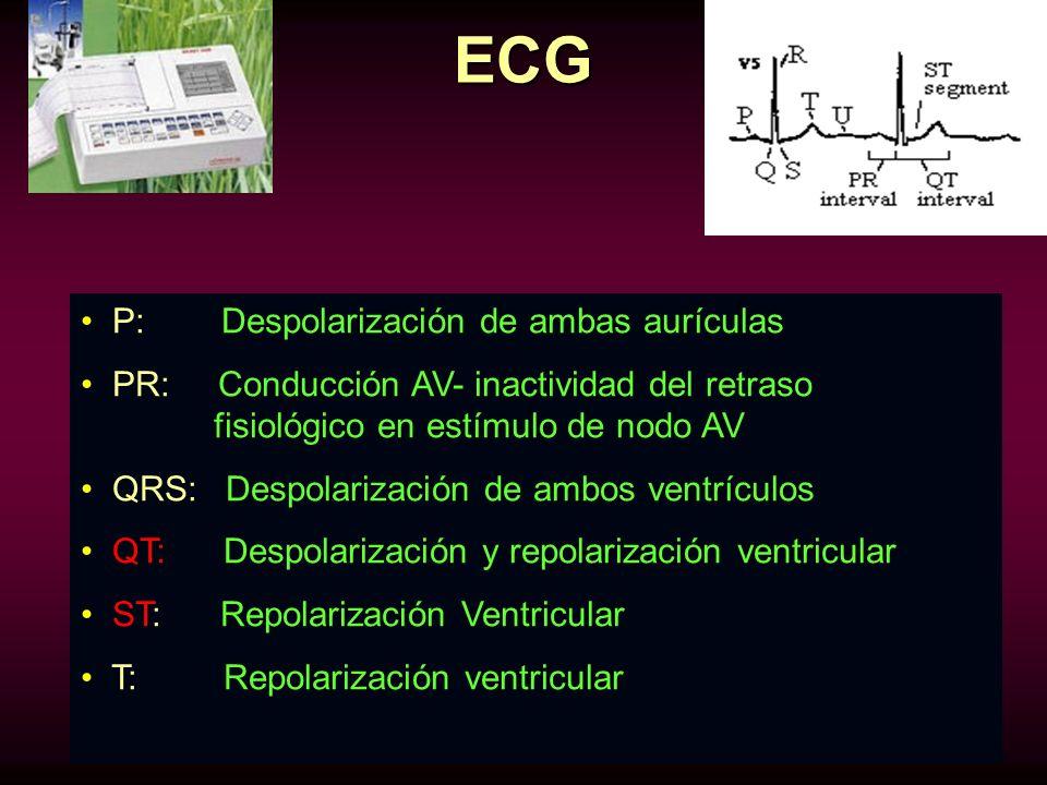 ECG P: Despolarización de ambas aurículas PR: Conducción AV- inactividad del retraso fisiológico en estímulo de nodo AV QRS: Despolarización de ambos