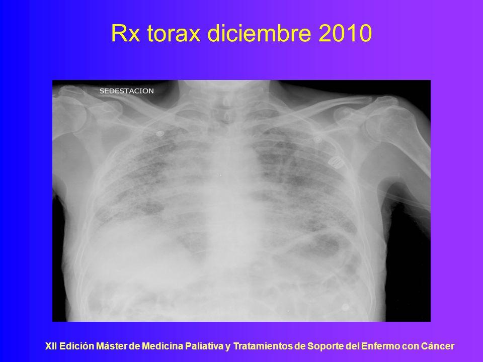 XII Edición Máster de Medicina Paliativa y Tratamientos de Soporte del Enfermo con Cáncer Rx torax diciembre 2010