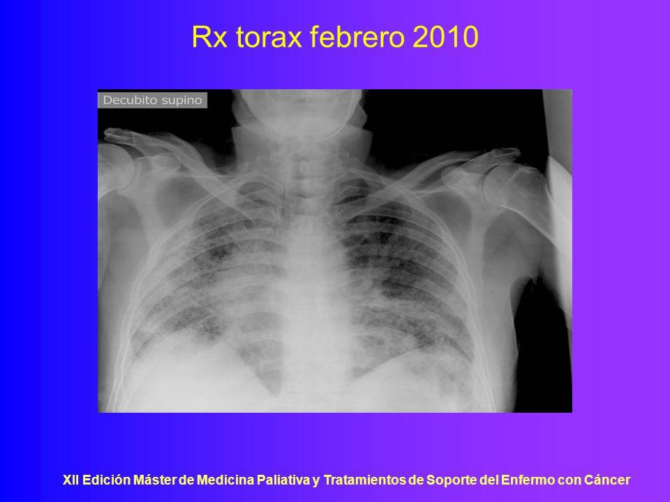 XII Edición Máster de Medicina Paliativa y Tratamientos de Soporte del Enfermo con Cáncer Rx torax febrero 2010