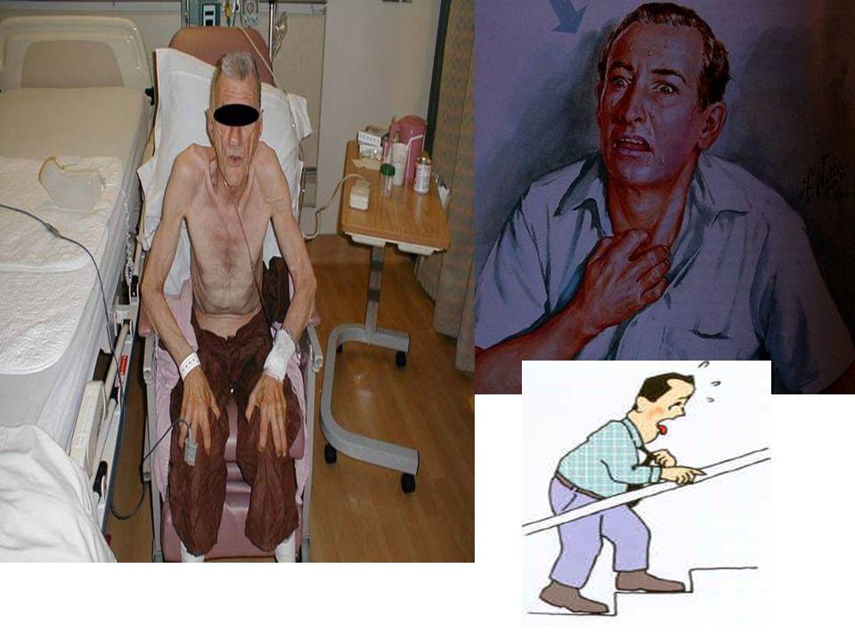 Tratamiento VII: Ventilación Mecánica no Invasiva Indicada la técnica en EPOC reagudizada y pacientes inmunocomprometidos E.L.A Controvertido en pacientes oncológicos activos con una complicación aguda Med Pal 2009;16(1) 20-24