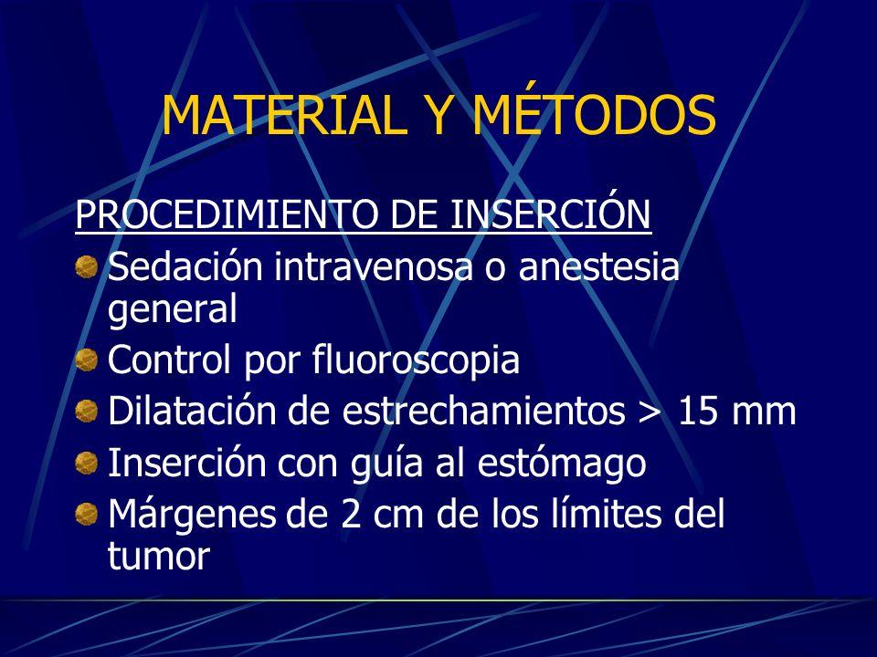 MATERIAL Y MÉTODOS PROCEDIMIENTO DE INSERCIÓN Sedación intravenosa o anestesia general Control por fluoroscopia Dilatación de estrechamientos > 15 mm Inserción con guía al estómago Márgenes de 2 cm de los límites del tumor