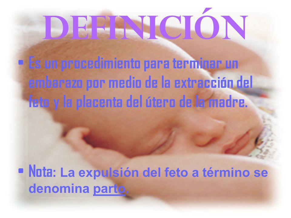 definición Es un procedimiento para terminar un embarazo por medio de la extracción del feto y la placenta del útero de la madre.