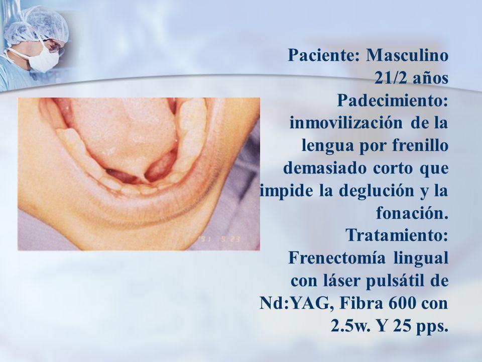 Paciente: Masculino 21/2 años Padecimiento: inmovilización de la lengua por frenillo demasiado corto que impide la deglución y la fonación. Tratamient
