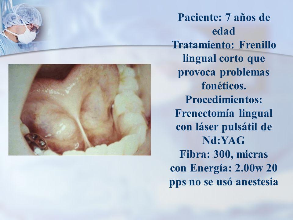 Paciente: 7 años de edad Tratamiento: Frenillo lingual corto que provoca problemas fonéticos. Procedimientos: Frenectomía lingual con láser pulsátil d