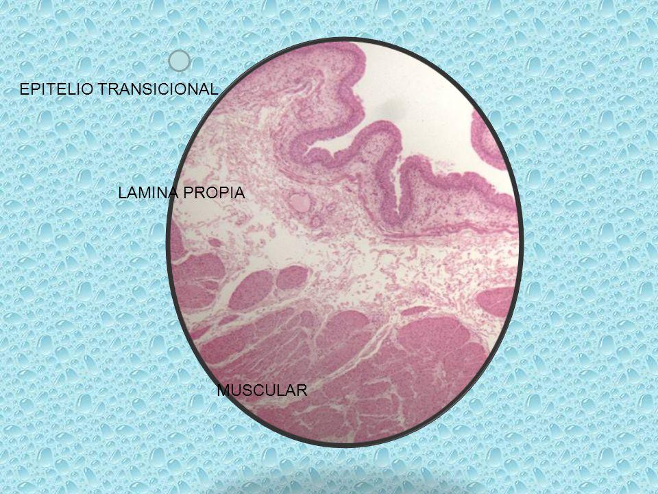 EPITELIO TRANSICIONAL LAMINA PROPIA MUSCULAR