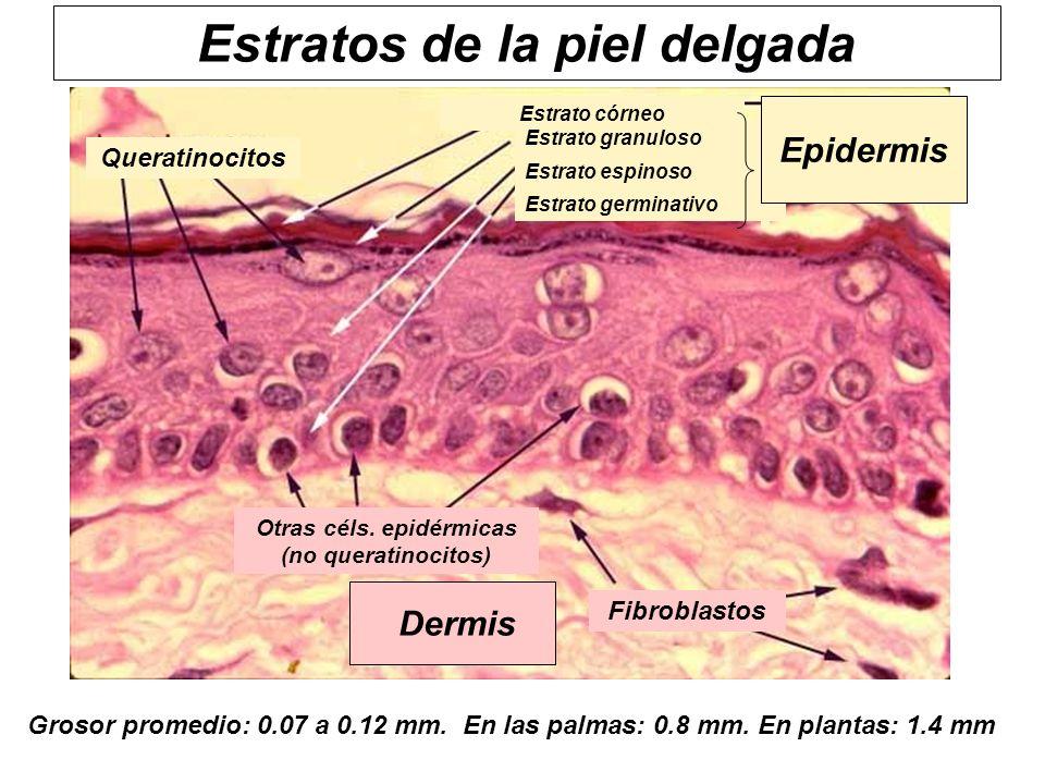 Estratos de la piel delgada Queratinocitos Estrato córneo Estrato germinativo Estrato espinoso Estrato granuloso Epidermis Dermis Fibroblastos Otras c