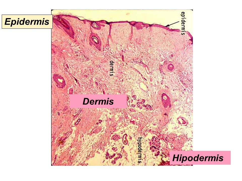 Hipodermis Dermis Epidermis